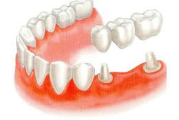 歯を失った場合の従来の治療法