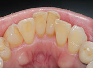 歯周病治療の症例